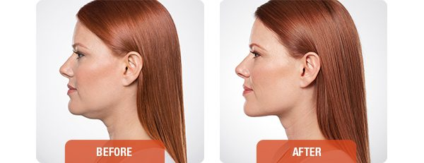 How to get rid of your double chin using Belkyra (Kybella)